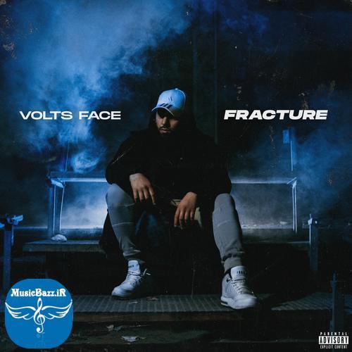 Volts Face Fracture